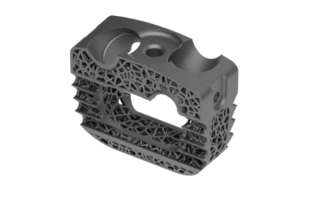 3D Printed Titanium Cervical Cage