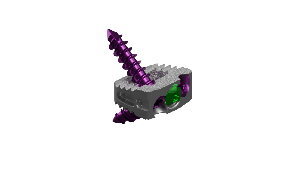 silver cervical stand alone implant with aggressive teeth and sharp purple screws.